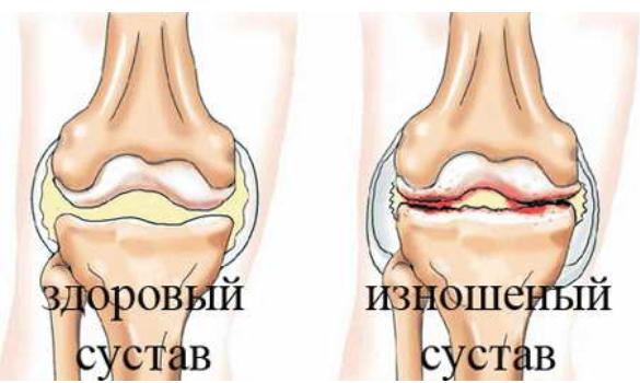 Лечение артроза коленных суставов днепропетровск как приготовить мазь из мумие для суставов и сосудов