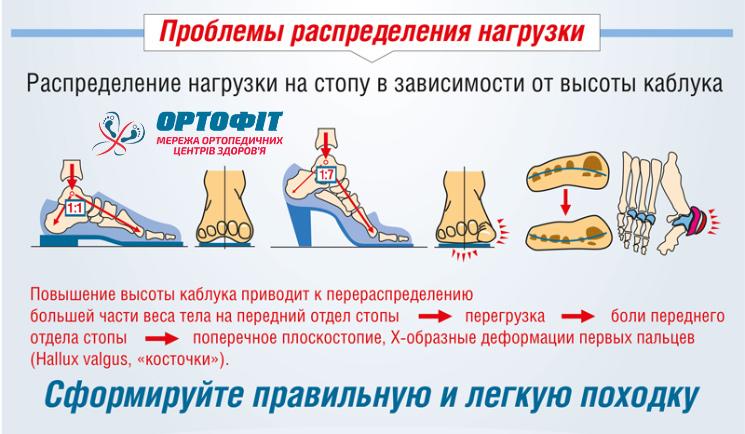 Распределение нагрузки на стопу в зависимости от высоты каблука
