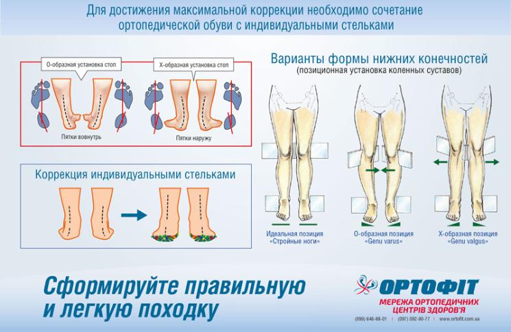 Сочетание ортопедической обуви с индивидуальными стельками