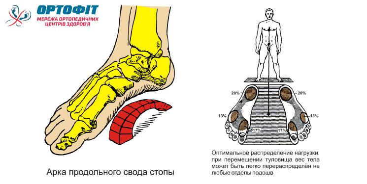 схема ортопедической стельки