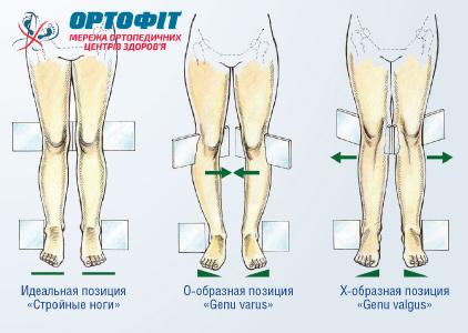 Корректирующие клинья ортопедическими стельками