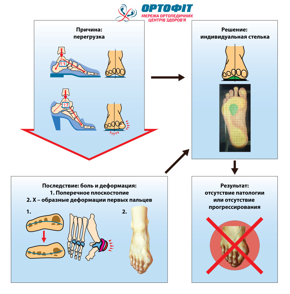 коррекция деформаций стоп ортопедическими стельками